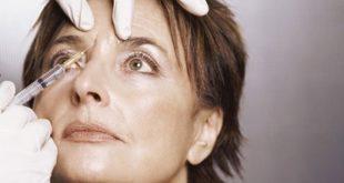 chirurgie estetica, injectare, botox, beneficii, efecte adverse, contraindicatii, efect