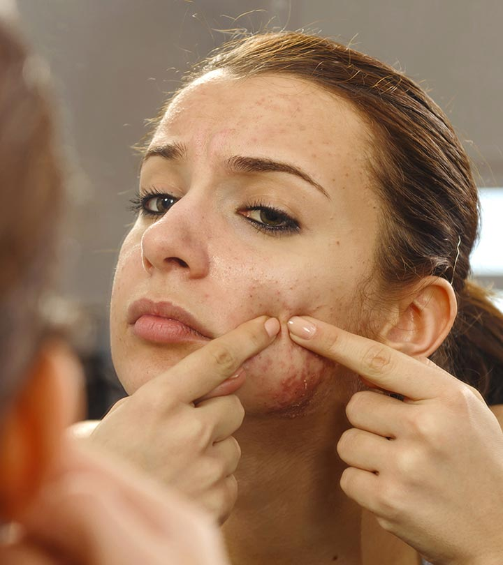 combaterea acneei